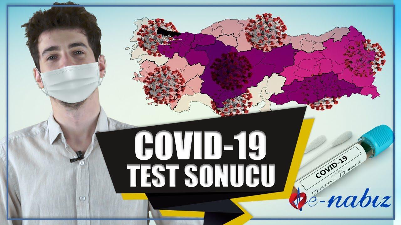KOVİT-19 TEST SONUCU ÖĞRENME
