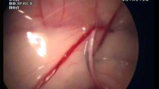 Inguinal canal cat