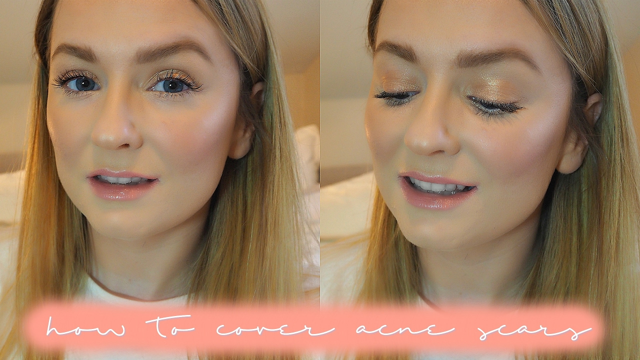how to get flawless foundation with acne