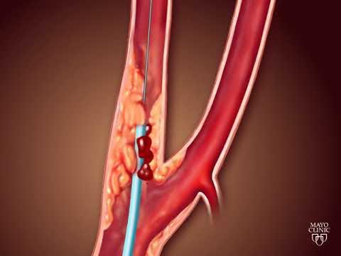 Carotid angioplasty and stenting