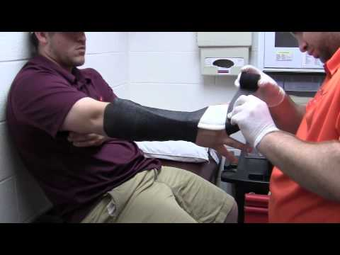 Radial Gutter Splint Youtube