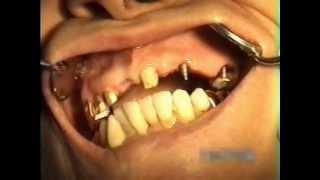видео Имплантаты