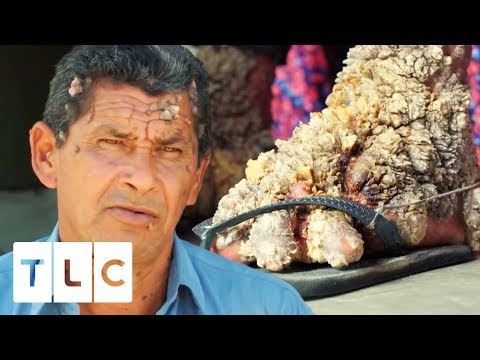 Luis Has Spent 40 Years Living With Extreme Viral Warts   Body Bizarre
