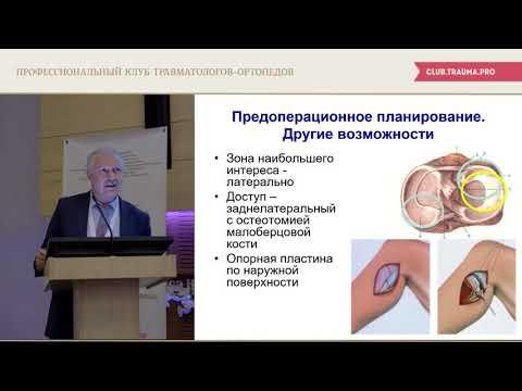 Переломы проксимального отдела большеберцовой кости