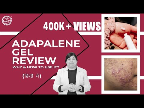 Adapalene Gel Review