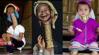 Những khó khăn bất tiện của những PN cổ dài phải mang những chiếc vòng cổ