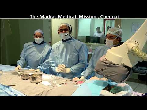 CSI Frankfurt 2017, Dr  Sivakumar, Madras Medical Mission, Chennai   Live Case Transmission 3