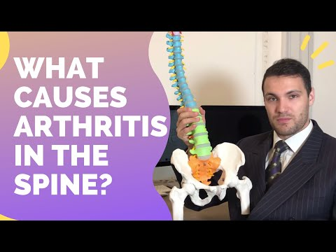 What Causes Arthritis In The Spine?