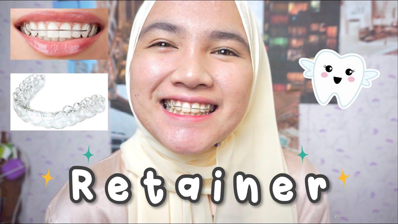 29++ Apa itu retainer gigi inspirations