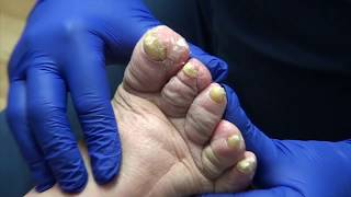 Trimming Fungal Nails on Patient with Neuropathy