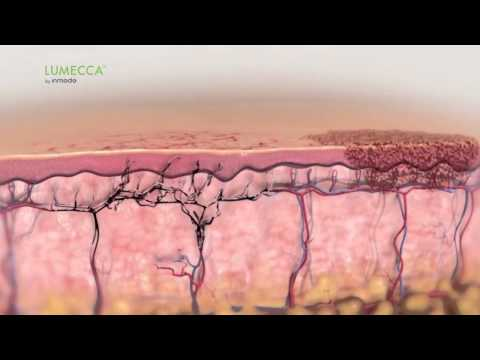 Lumecca IPL for Skin Rejuvenation - How It Works