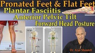Pronated Feet & Flat Feet Causing Plantar Fasciitis, Anterior Pelvic Tilt, Forward Head Posture