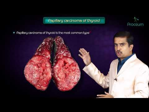 Thyroid neoplasms part 1 ( Papillary carcinoma of thyroid ) - Endocrine pathology