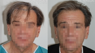 Hair transplant FUT 3500 grafts - english