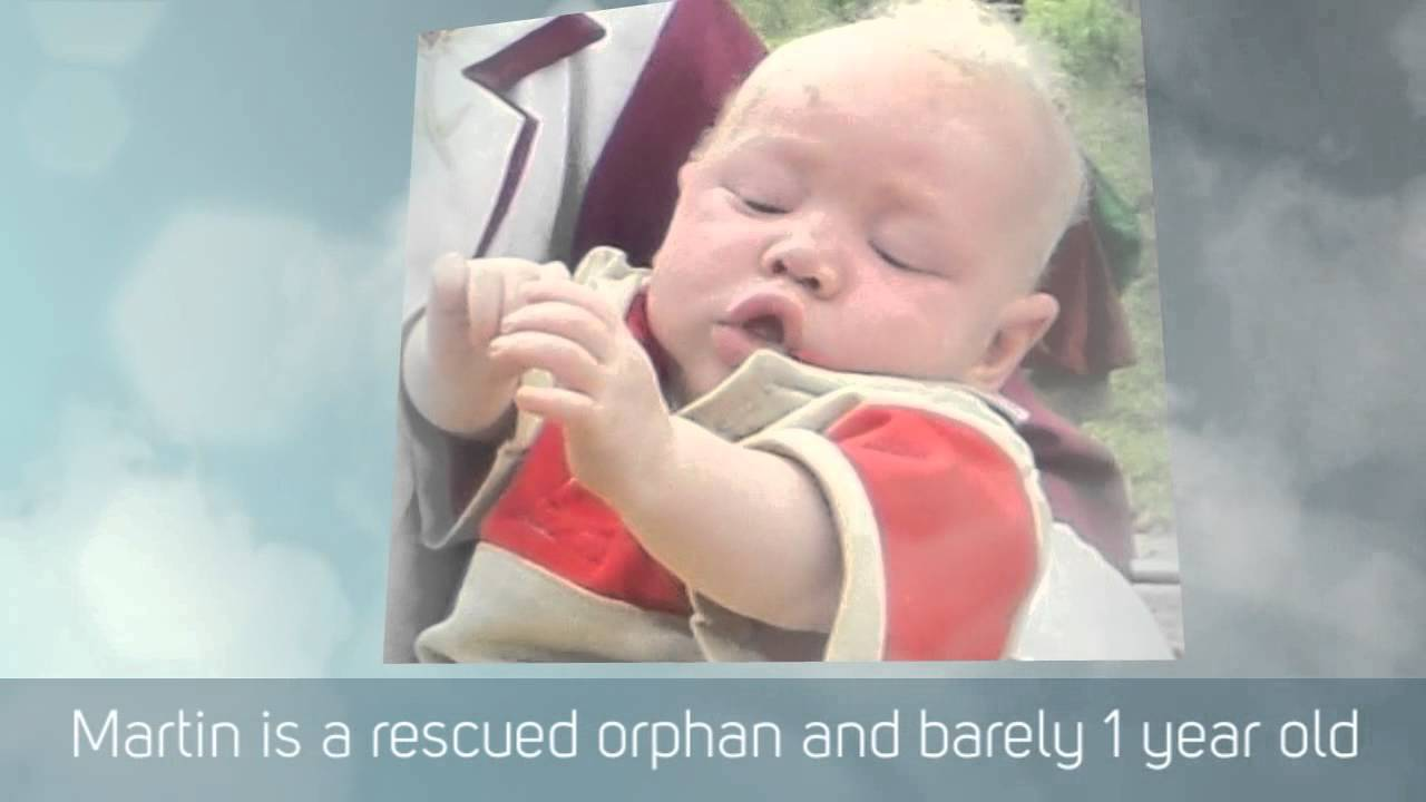 Rescue Of Albino Babies Albino Rescue Project Uganda