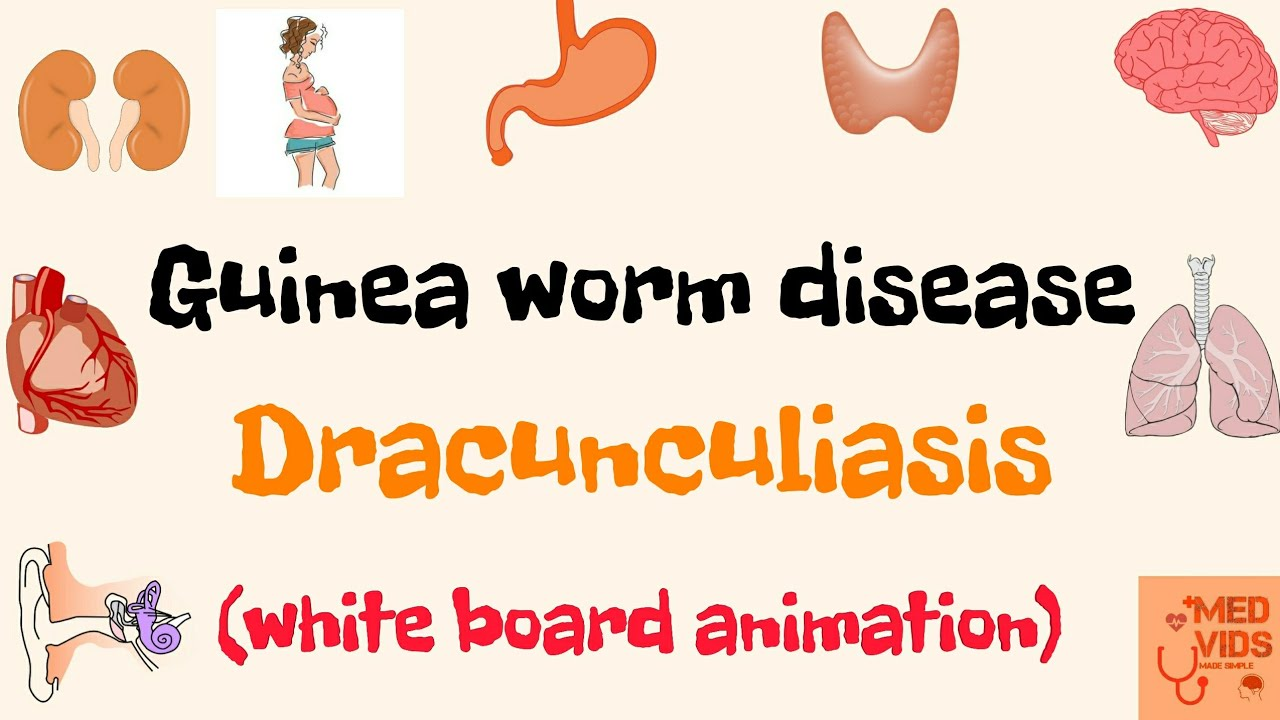 vierme dracunculus