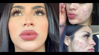 Full-Coverage Acne Makeup-Tutorial!TIPS YOU NEED TO KNOW!