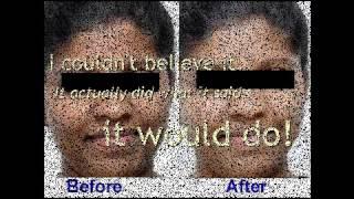 Skin Bleaching Cream? I found a better solution! Thumbnail