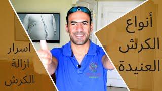 ازلة الكرش و دهونه البطن - انواع الكرش وحيل التخلص منه -2019