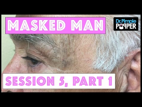 The Masked Man, Extensive Solar Comedones: Session Two ...