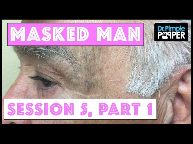 The Masked Man, Dr Pimple Popper, and NikkieTutorials: Blackhead Extractions! Session 5, Part 1