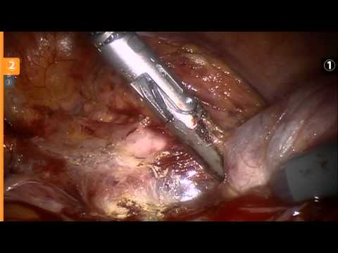 Hysterectomy Demonstrate by Dr. Marc Winter