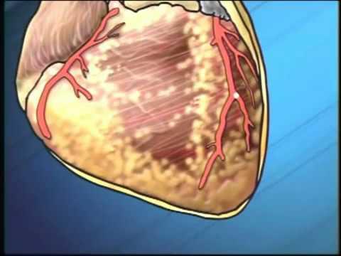 Periodontal Disease Heart Disease Port Rowan Care Dental