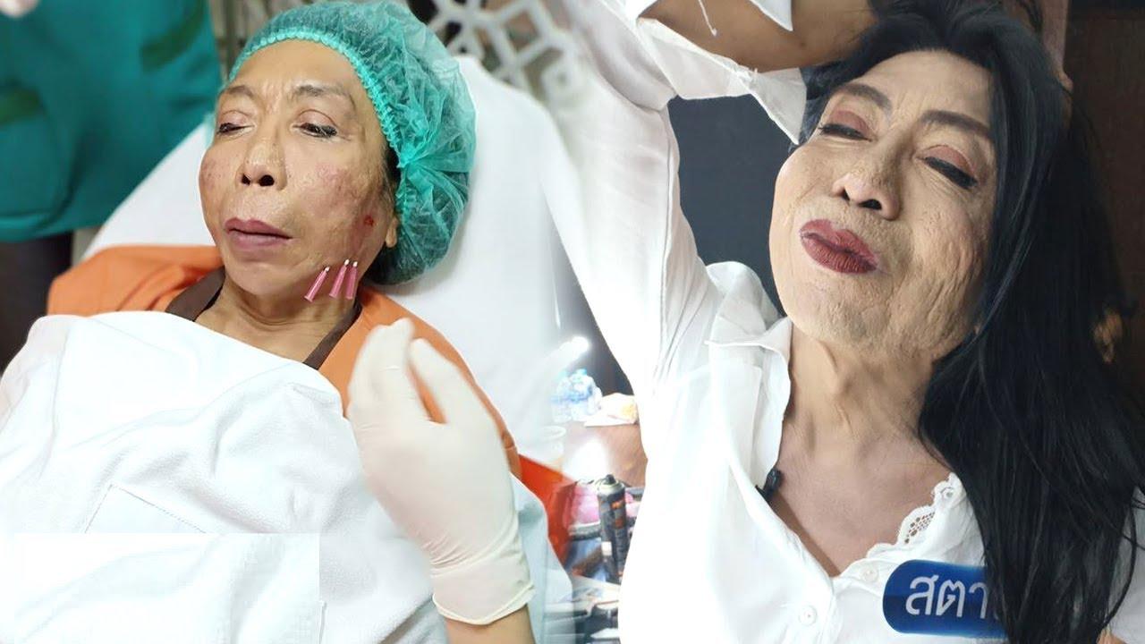 Nối Gót Cô Dâu 61 Tuổi, 'Cụ Bà' Thái Lan Cũng Đi Tân Trang N,han S,ắc Nhưng Kết Quả Thế Này Đây
