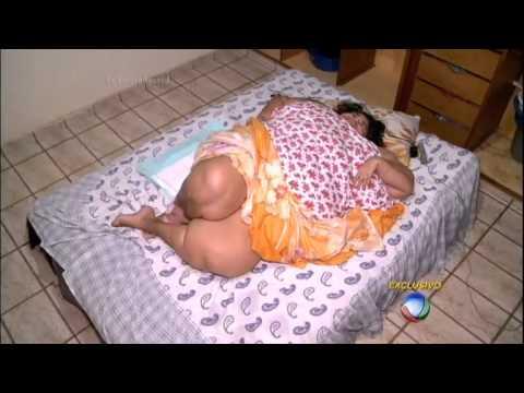 Com 360 Kg, mulher mais obesa do Brasil não sai da cama há t 1