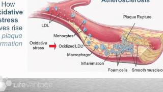 Repeat youtube video Protandim and The Ohio State Heart Study