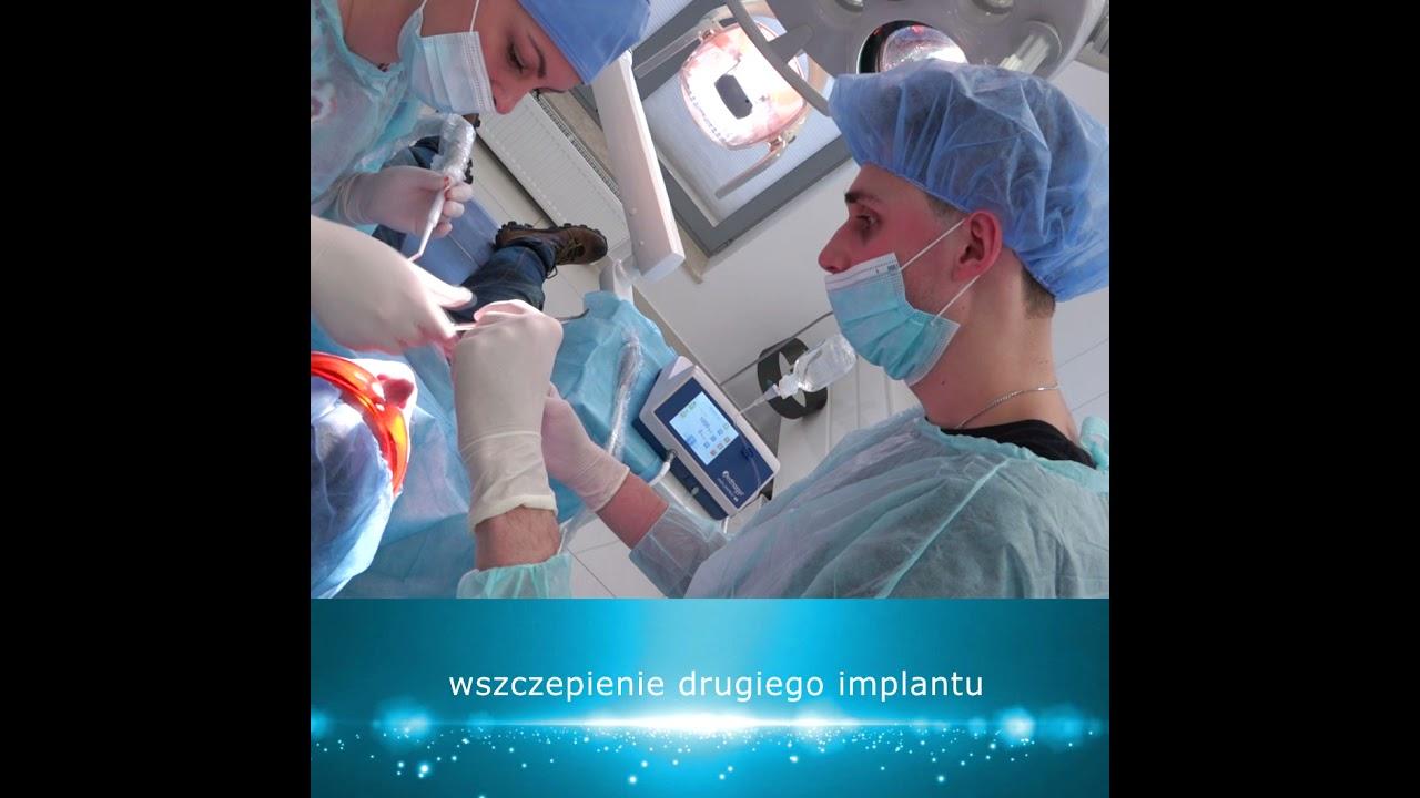Practiculum Implantologii Sezon XB Sesja9 zabieg5