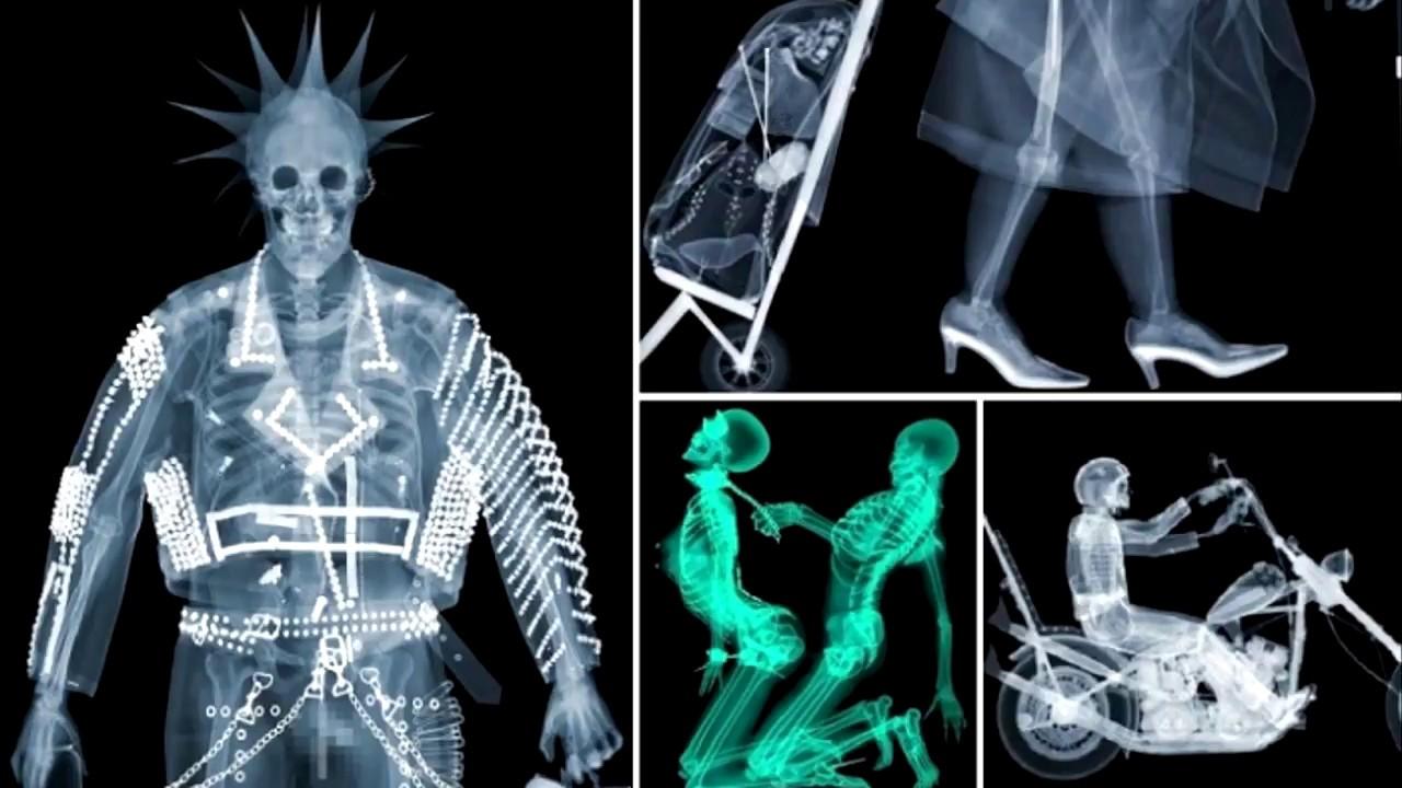 Открытку марта, картинки рентген прикол