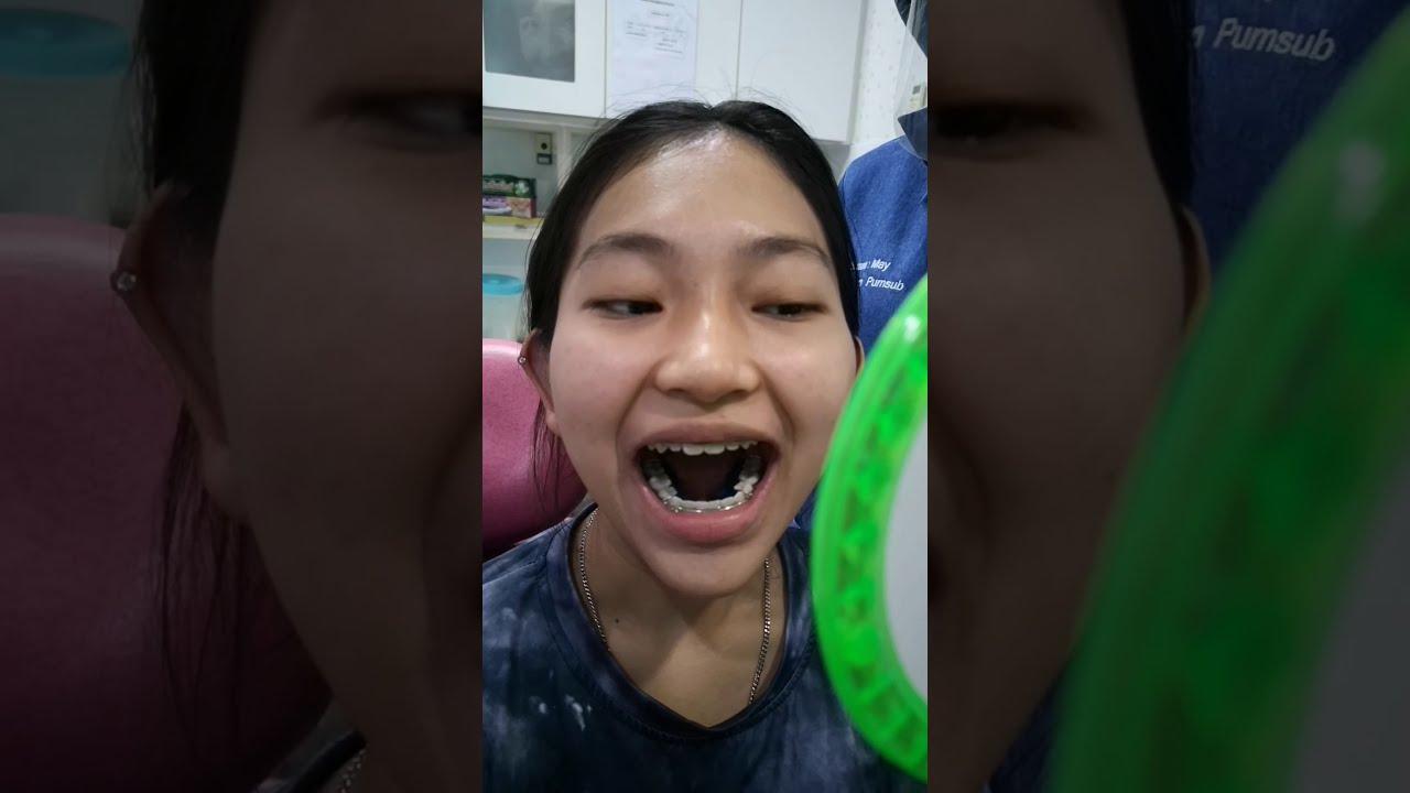 จัดฟันมาตั้งนาน ถึงเวลาอำลา ถอดเครื่องมือ ถอดเหล็กจัดฟันกันเสียที รีวิวเต็มๆทุกขั้นตอน ใส่รีเทนเนอร์