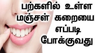 Teeth Yellow Stain Removing Home Remedy In Tamil | Teeth whitening treatment DIY