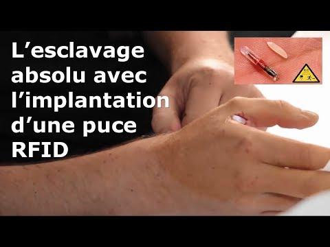L'esclavage absolu avec l'implantation d'une puce RFID - YouTube