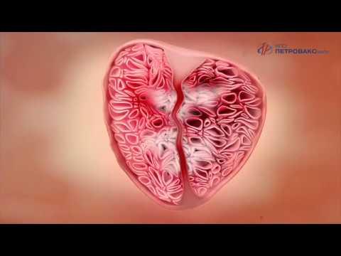 Longidaza, Urology   Механизм действия препарата