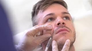 Male Facial Rejuvenation with Dermal Fillers