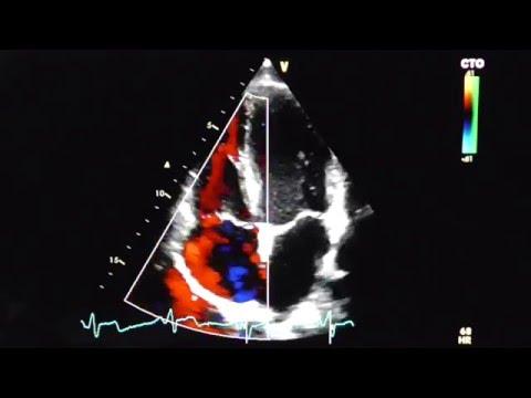 4-Kammer-Blick mit Farbdoppler