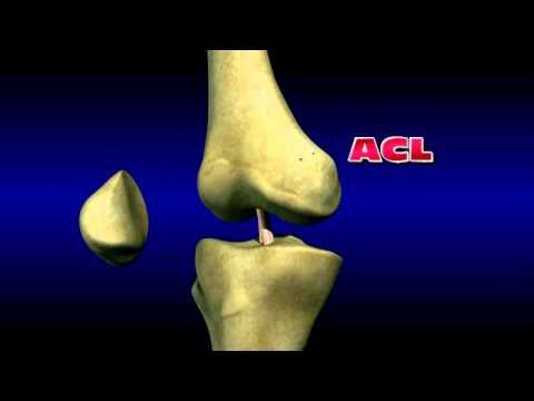 Anterior Cruciate Ligament Injuries