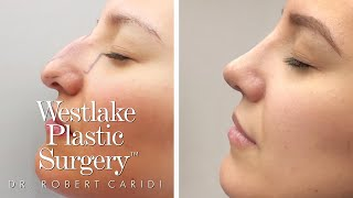 Nose Job Before And After Transformation - Rhinoplasty Surgical Footage