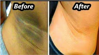 How to lighten dark underarms in telugu  Easy way to lighten,brighten armpits by mana inty tip