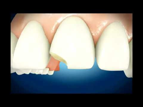 The Different Types of Dentures Available As an Option in Teeth Repair