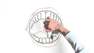 Как правильно чистить зубы. Видео.(Вы дорожите своей улыбкой? Узнайте как правильно чистить зубы, чтобы избежать возможных проблем. Потратив..., 2015-09-30T14:02:45.000Z)