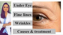 Fine lines | wrinkles| under eye|  causes & treatment| Prevention | Dr. Aanchal Panth