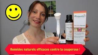 Couperose et rosacée: Remédes naturels efficaces et simples !