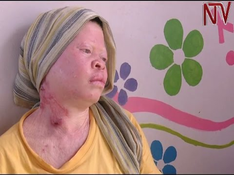 Albinos Seek Government Assistance In Treatment And Prevention Of Skin Cancer Youtube