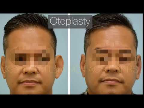 Dallas Otoplasty of the Left Ear One Day Out