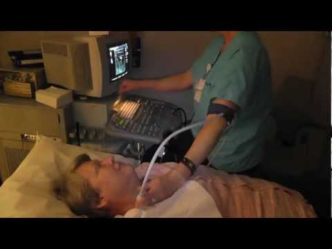 Ask ADC: Carotid Ultrasound