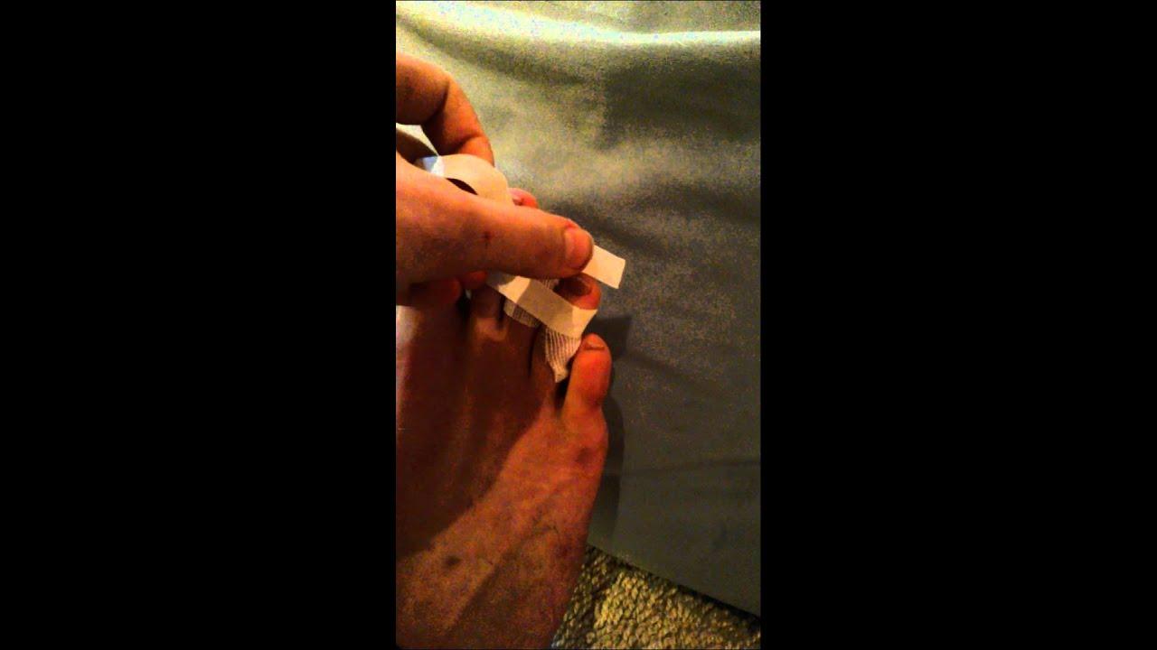 Zeh gebrochen tape kleiner Gebrochener Zeh:
