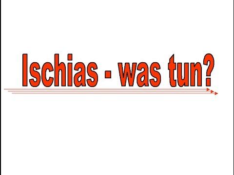 ischias was nun nat rliche heilung bei ischiasschmerzen. Black Bedroom Furniture Sets. Home Design Ideas